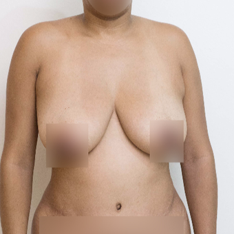 35-44 year old woman treated with Breast Lift before 3470271