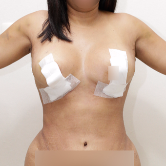 35-44 year old woman treated with Breast Lift after 3470271