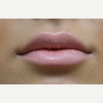 18-24 year old woman treated with Lip Augmentation after 3854696