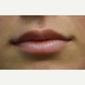 18-24 year old woman treated with Lip Augmentation before 3854696