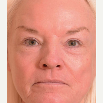 55-64 year old woman treated with Laser Treatment after 3104909
