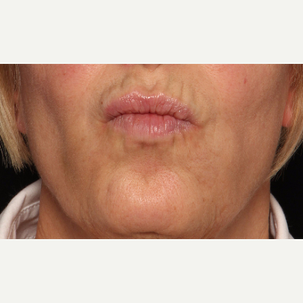 65-74 year old woman treated with Botox after 3520288