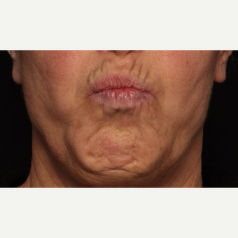 65-74 year old woman treated with Botox before 3520288