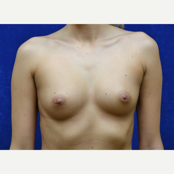 18-24 year old woman treated with Breast Implants before 3724743