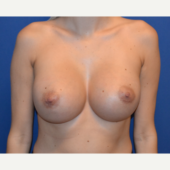 18-24 year old woman treated with Breast Implants after 3724743