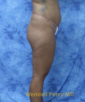 18-24 year old woman treated with Brazilian Butt Lift before 3341099