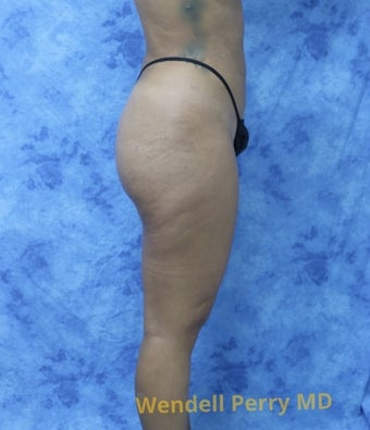 18-24 year old woman treated with Brazilian Butt Lift after 3341099