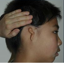 Microtia aka Small Ear by Dr Kasrai, Toronto Female Plastic Surgeon before 894556