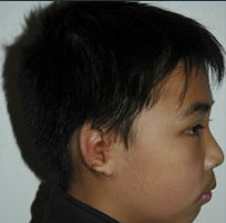 Microtia aka Small Ear by Dr Kasrai, Toronto Female Plastic Surgeon after 894556