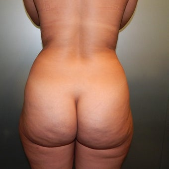 25-34 year old woman treated with Brazilian Butt Lift before 1883142