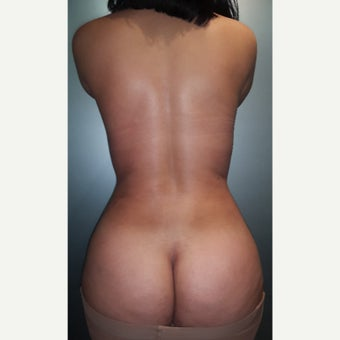 25-34 year old woman treated with Brazilian Butt Lift after 1883142