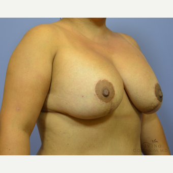 25-34 year old woman treated with Breast Lift with Implants after 3386484