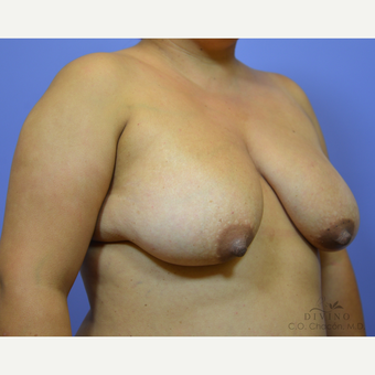 25-34 year old woman treated with Breast Lift with Implants before 3386484