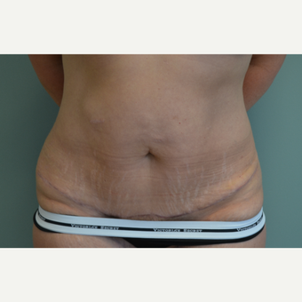 35-44 year old woman treated with Tummy Tuck after 3658436