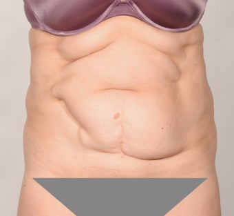 No Drain Tummy Tuck before 1339926