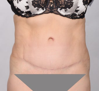 No Drain Tummy Tuck after 1339926
