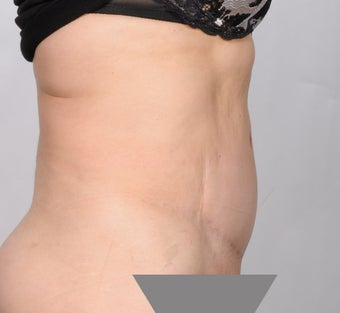 No Drain Tummy Tuck 1339926