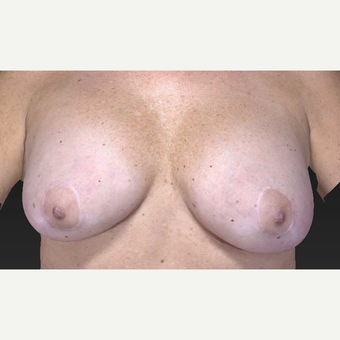 45-54 year old woman treated with Breast Implant Removal and Breast Lift before 3563890