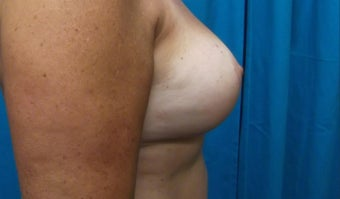 45-54 year old woman treated with Breast Implant Removal and Breast Lift 3563890