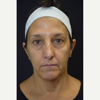 35 to 45 year old woman treated with Botox and Voluma before 2996334