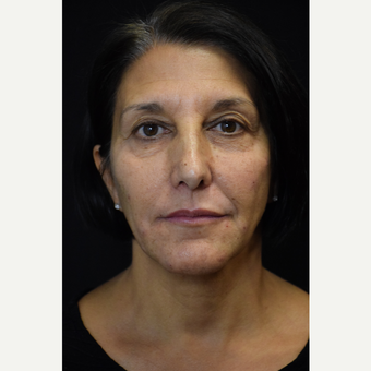 35 to 45 year old woman treated with Botox and Voluma after 2996334