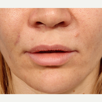 35-44 year old woman treated with Lip Lift before 3225990