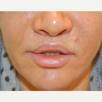 35-44 year old woman treated with Lip Lift after 3225990