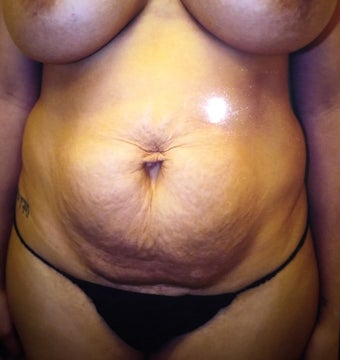 35-44 year old woman treated with Tummy Tuck before 3379030