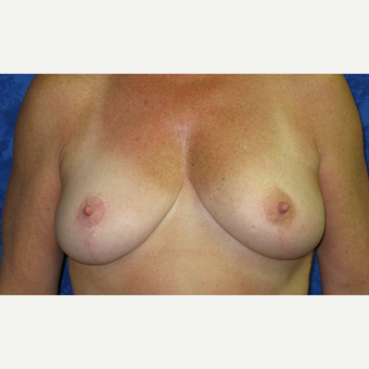 45-54 year old woman treated with Breast Reduction after 3306028