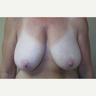 45-54 year old woman treated with Breast Reduction before 3306028