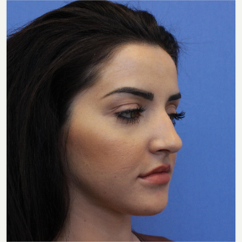 25-34 year old woman treated with Rhinoplasty before 3377780