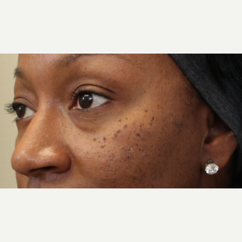 25-34 year old woman treated with Skin Rejuvenation before 2851958