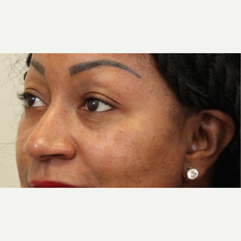 25-34 year old woman treated with Skin Rejuvenation after 2851958