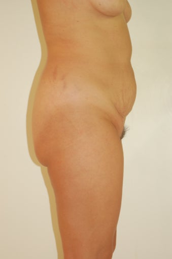 Buttock Enhancement before 905645