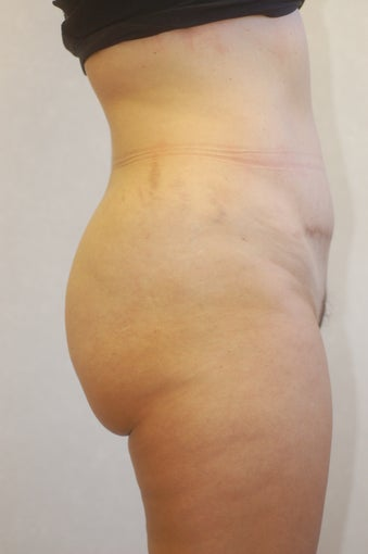 Buttock Enhancement after 905645