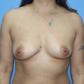 35-44 year old woman treated with Breast Augmentation before 3143243