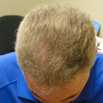 45-54 year old man treated with PRP for Hair Loss after 2732160