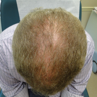 45-54 year old man treated with PRP for Hair Loss before 2732160