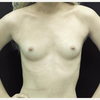 18-24 year old woman treated with Breast Augmentation before 3186781