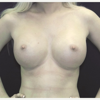 18-24 year old woman treated with Breast Augmentation after 3186781