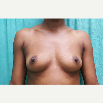 25 year old woman treated with Breast Implants before 3228214