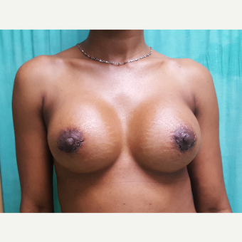 25 year old woman treated with Breast Implants after 3228214