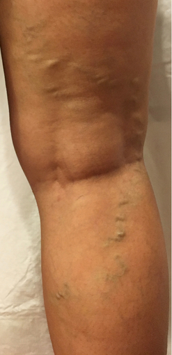 55-64 year old woman treated with EVLT