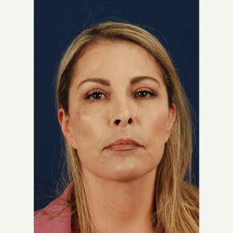 45-54 year old woman treated with Facelift after 3339982