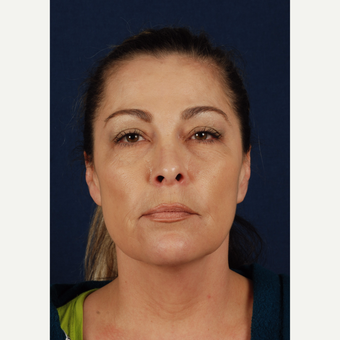 45-54 year old woman treated with Facelift before 3339982