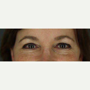 49 year old woman treated with Upper & Lower Blepharoplasty, Cutera Laser, and Ultherapy before 3332630