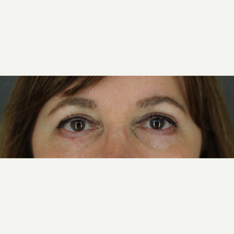 49 year old woman treated with Upper & Lower Blepharoplasty, Cutera Laser, and Ultherapy after 3332630