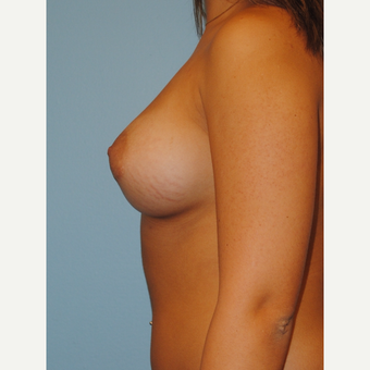 20 Year old with 330 cc Saline high profile implants after 3168665