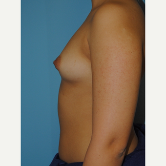 20 Year old with 330 cc Saline high profile implants before 3168665
