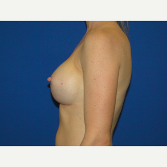 Breast Augmentation with 350 cc Silicone Implants after 3738786